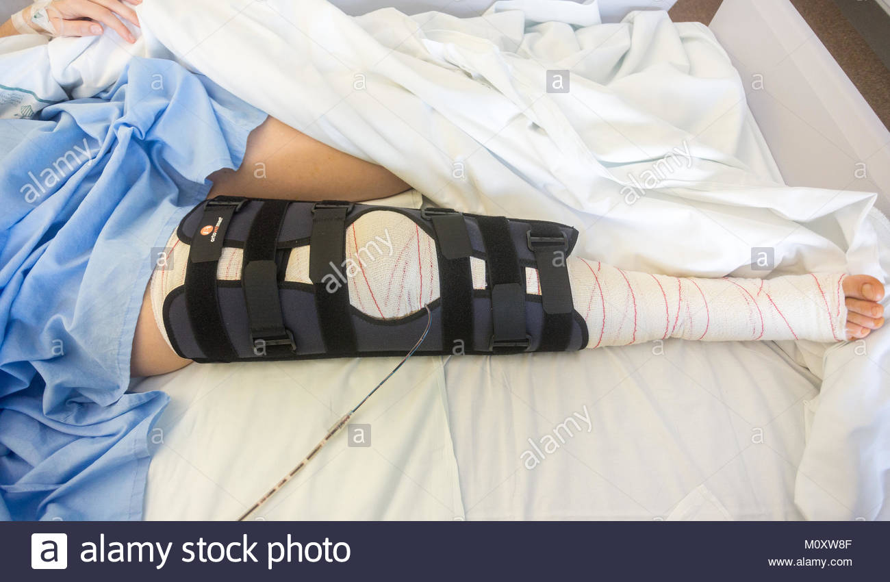 female patient in hospital bed with a knee immobilizer - Stock Image
