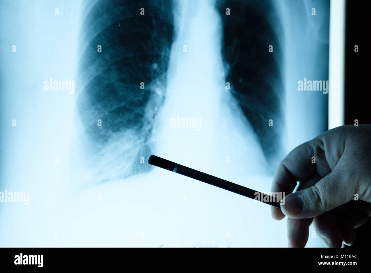 doctor checking chest x-ray film. Doctor examining a lung radiography - Stock Image