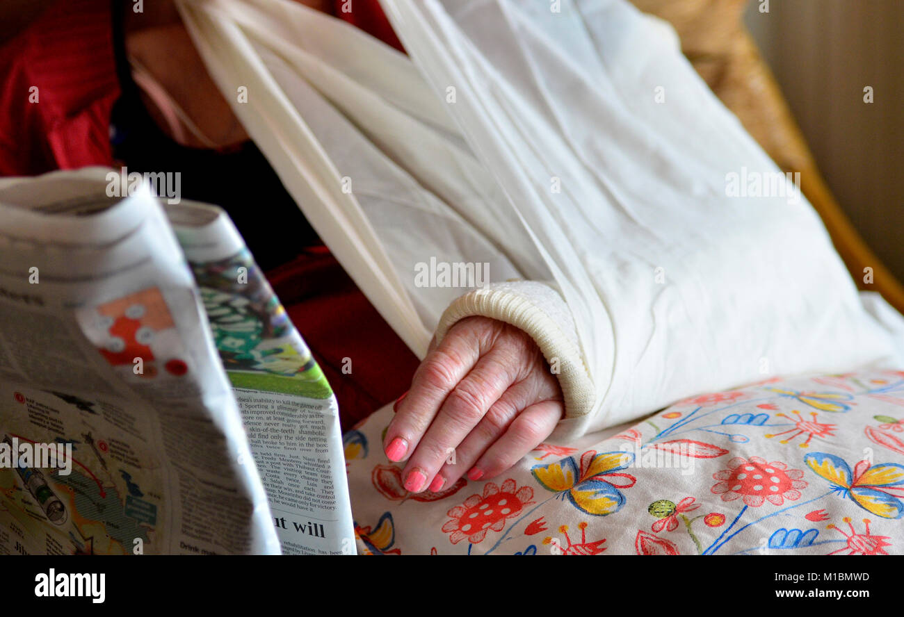 Recovering from a broken elbow. Arm put into a plaster cast and a sling for added support. Robert Timoney/Alamy. - Stock Image