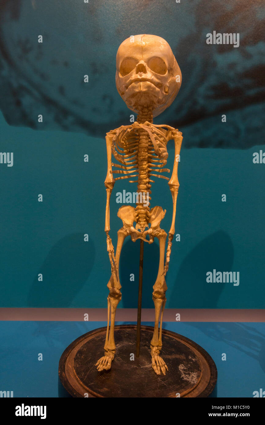 Human child fetal skeleton at 7 months on display in the National Museum of Health and Medicine, Silver Spring, - Stock Image