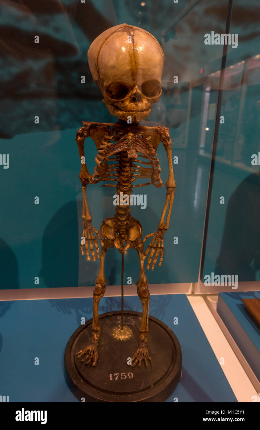 Human child fetal skeleton at 9 months on display in the National Museum of Health and Medicine, Silver Spring, - Stock Image