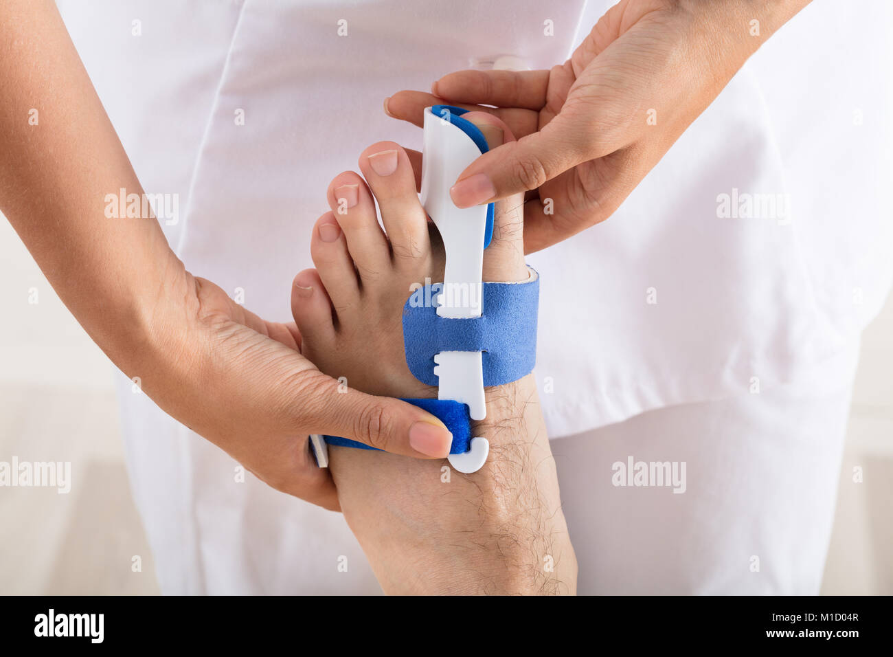Close-up Of A Orthopedist Fixing Plaster On Injured Man's Foot In Clinic - Stock Image