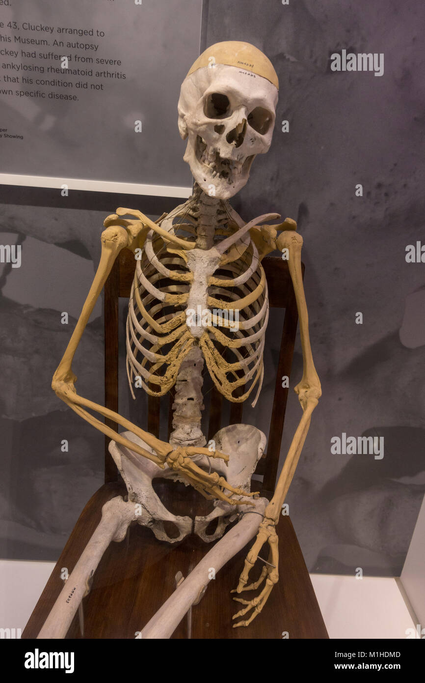 The skeleton of Peter Cluckey who died of chronic rheumatism on display in the National Museum of Health and Medicine, - Stock Image