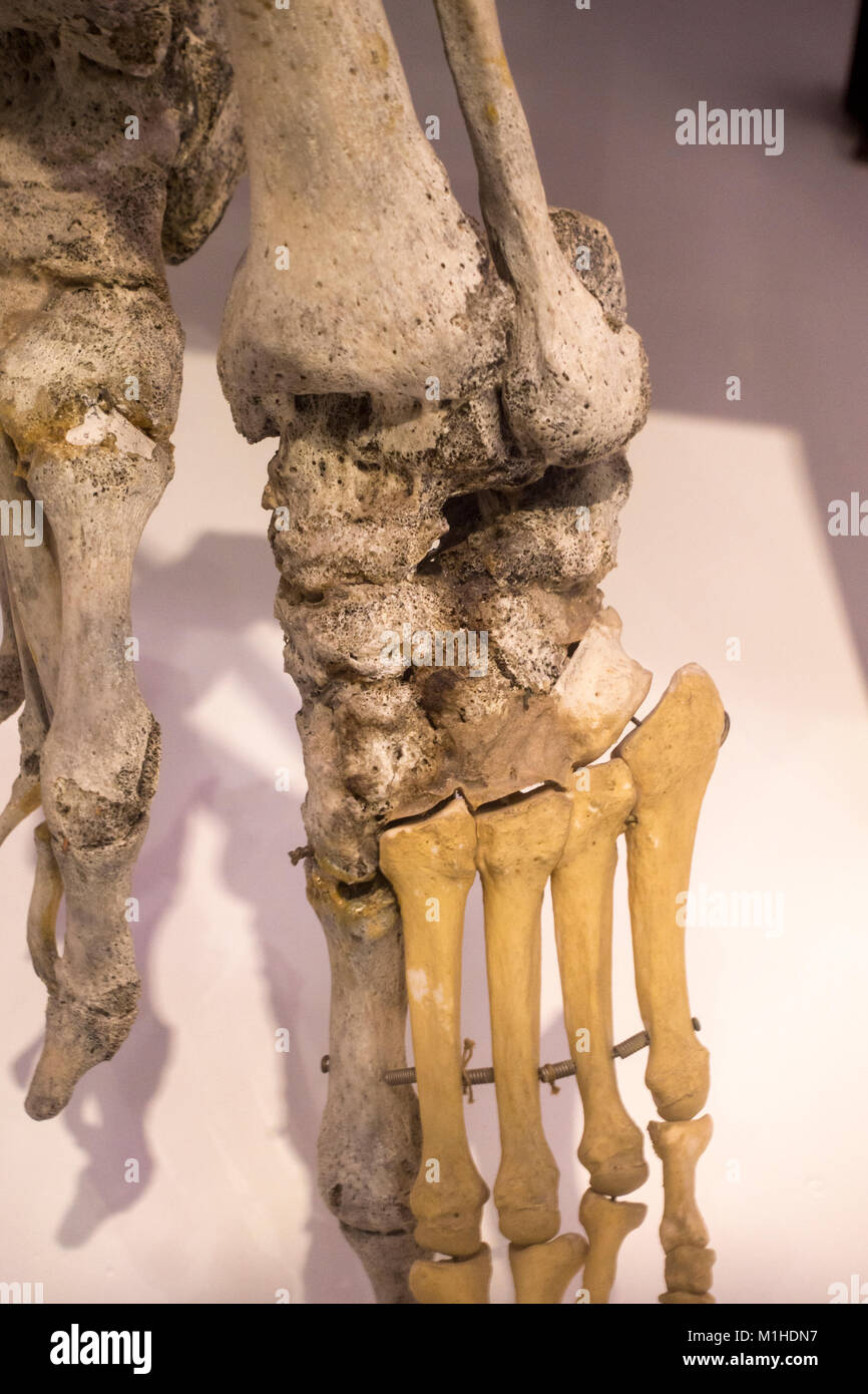 The left foot of Peter Cluckeys skeleton, who died of chronic rheumatism, National Museum of Health and Medicine, - Stock Image