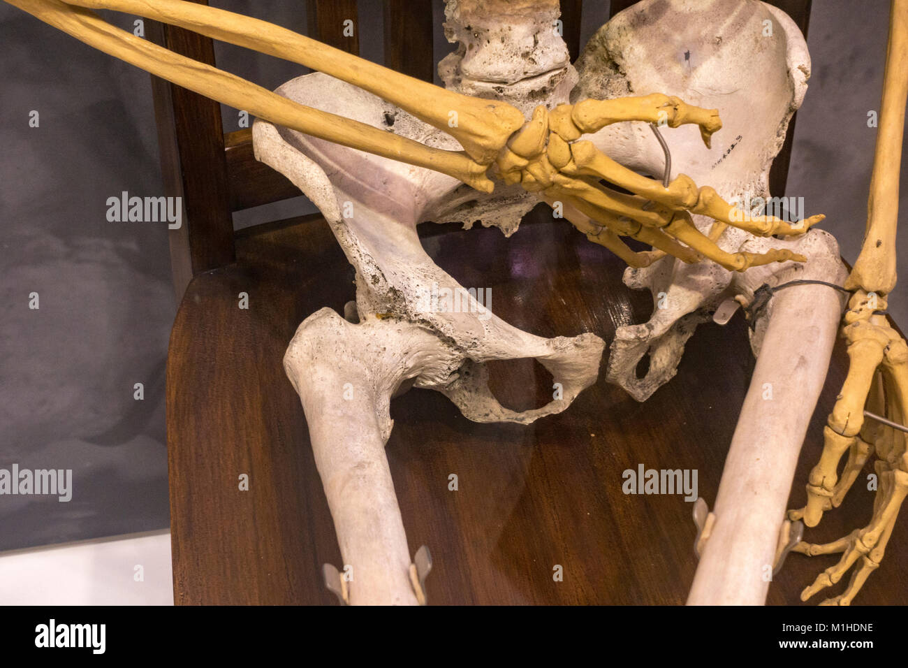 The pelvis of Peter Cluckeys skeleton, who died of chronic rheumatism on display in the National Museum of Health - Stock Image