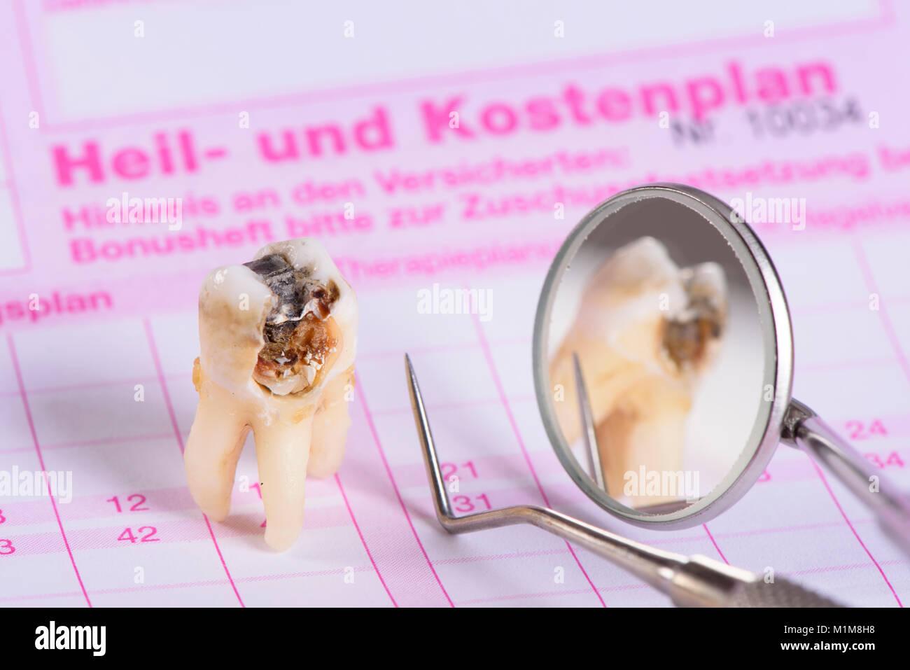 Heil- und Kostenplan für Zahnersatz mit extrhiertem Backenzahn Stock Photo