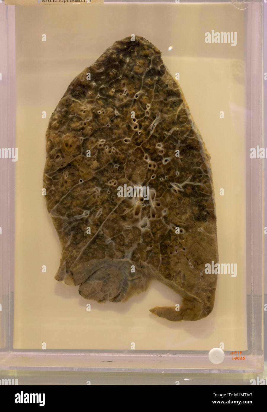 A human lung suffering from bronchopneumonia from the 1918 influenza outbreak, National Museum of Health and Medicine, - Stock Image