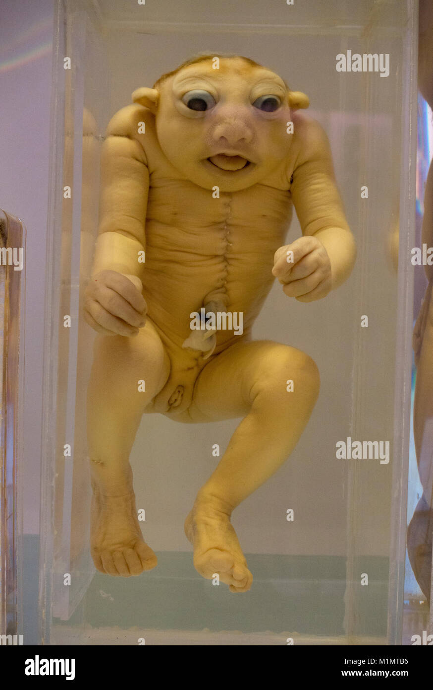 A fetus with a congenital anomaly (anencephaly) on display in the National Museum of Health and Medicine, Silver - Stock Image