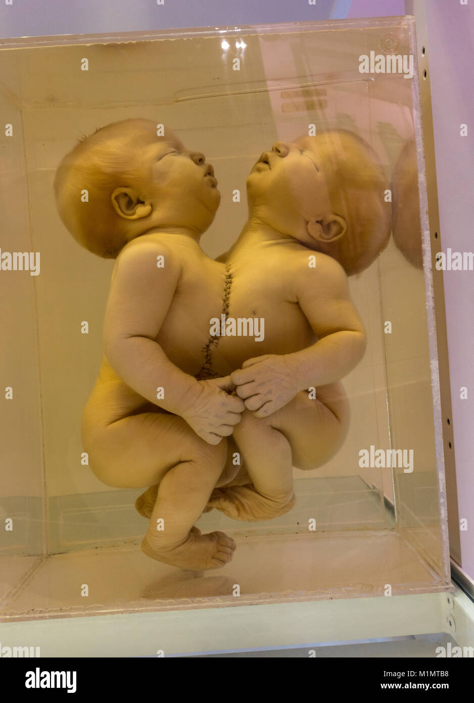A pair of conjoined twins with a congenital anomaly (thoracopagus) on display in the National Museum of Health and - Stock Image