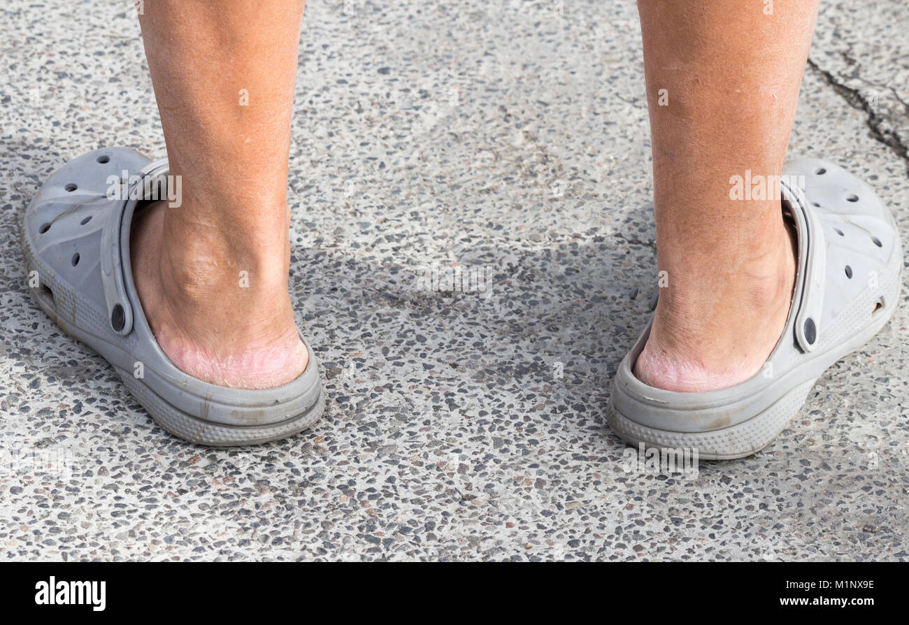 Crocs sandals. Person wearing Crocs without socks. Cracked skin on heel Stock Photo