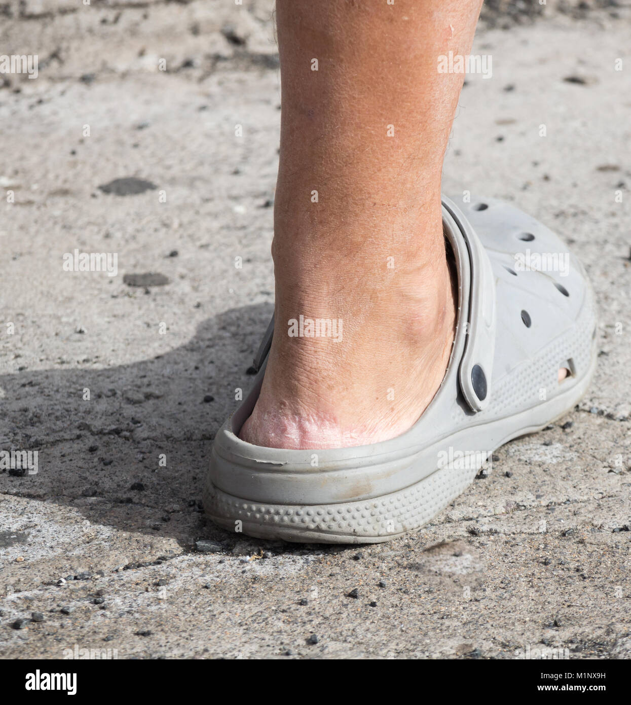 Crocs sandals. Person wearing Crocs without socks. Cracked skin on heel - Stock Image