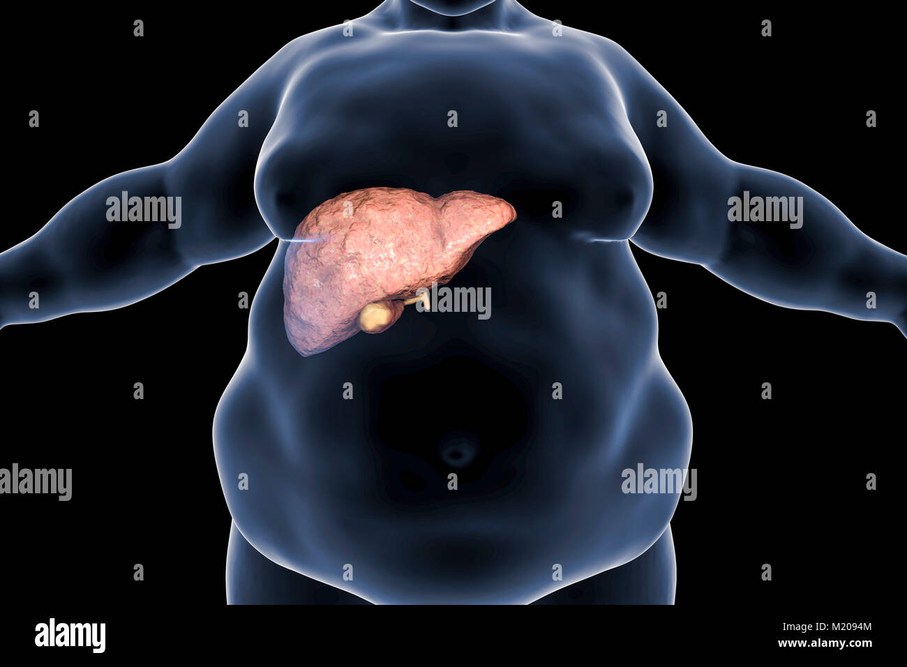 Fatty liver in obese person, conceptual illustration. Fatty liver is commonly associated with alcohol or metabolic - Stock Image