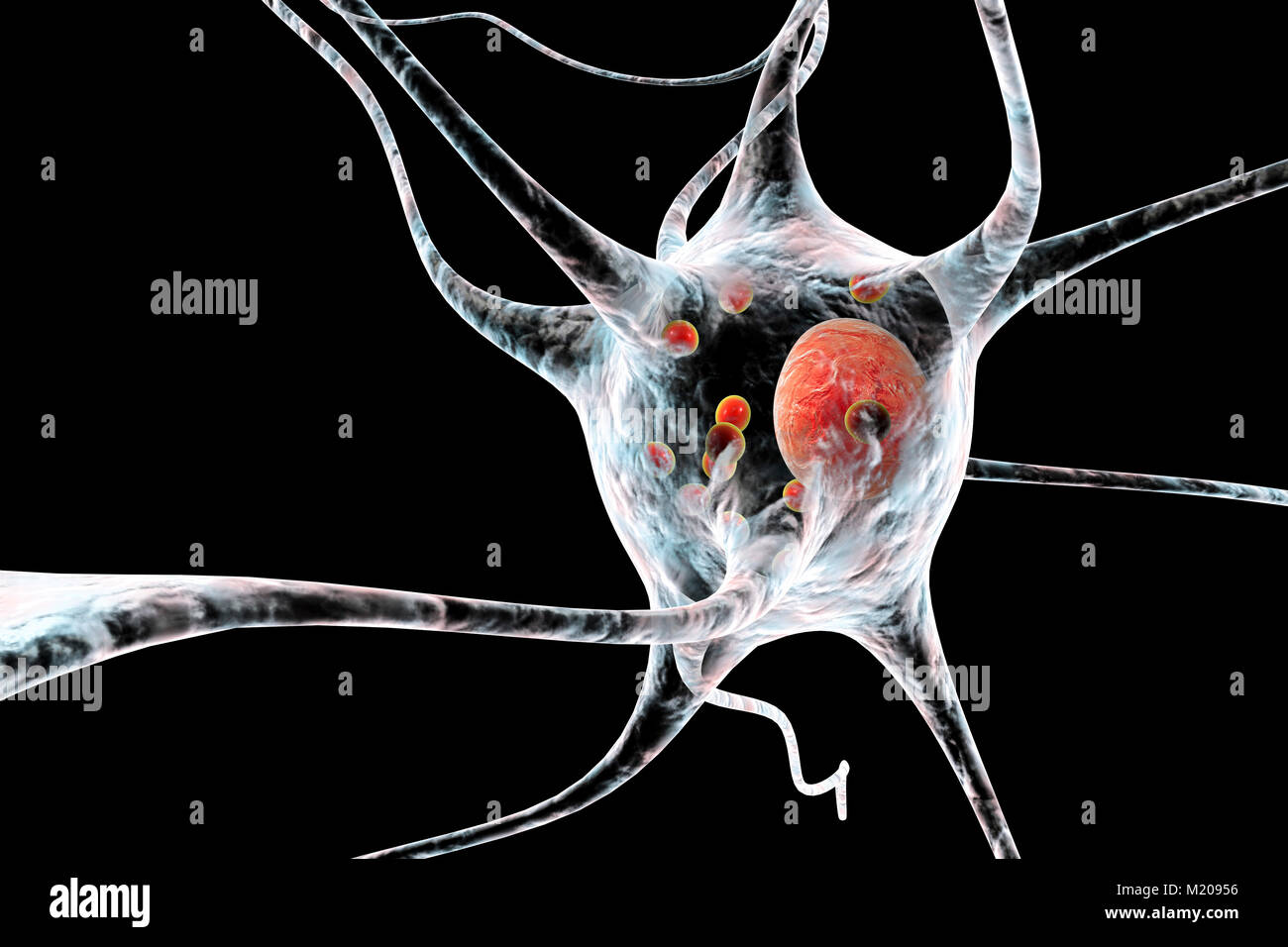 Parkinson's disease nerve cells. Computer illustration of human nerve cells affected by Lewy bodies (small red - Stock Image