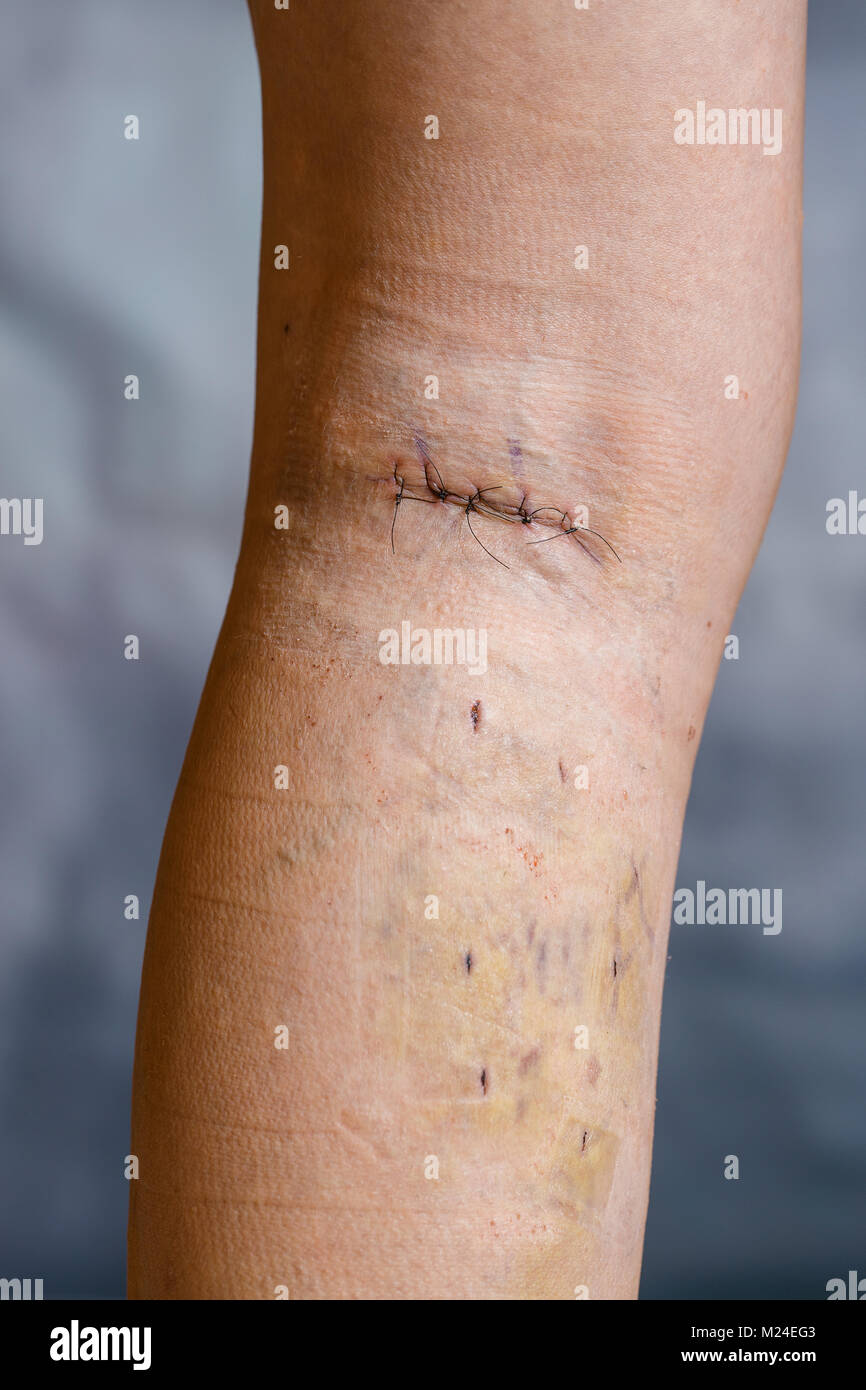 Womans leg after phlebectomy, with visible surgical sutures (stitches) and wounds on her leg. Curative treatment, - Stock Image