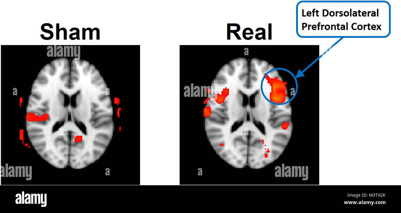 A functional imaging scan from a neuroimaging study performed by the Non-Invasive Brain Stimulation (NIBS) Team Stock Photo