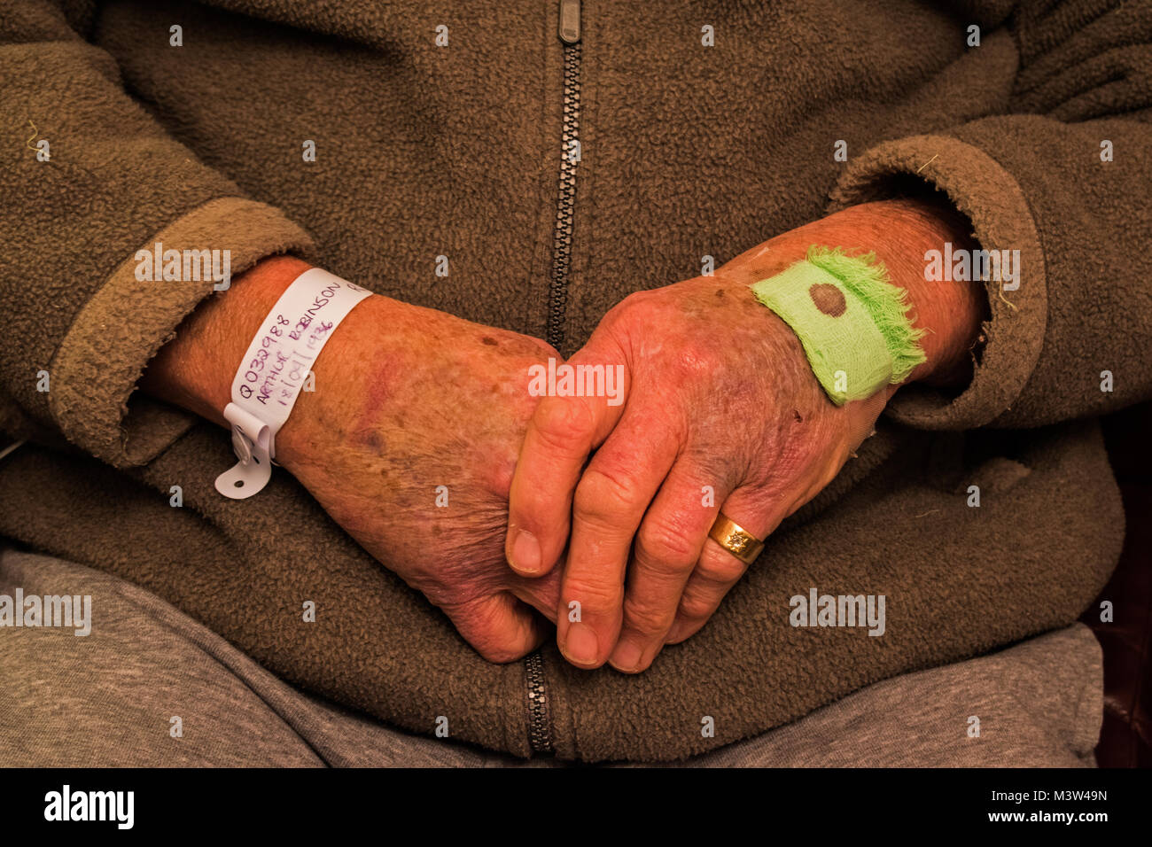 Elderly patient with bruised hands - Stock Image