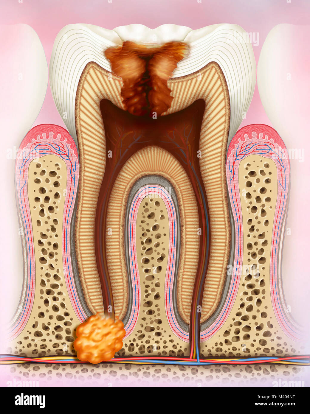 Caries in degenerative and infectious phases in which you can see the pulp inflated with abscess. Caries is characterized - Stock Image