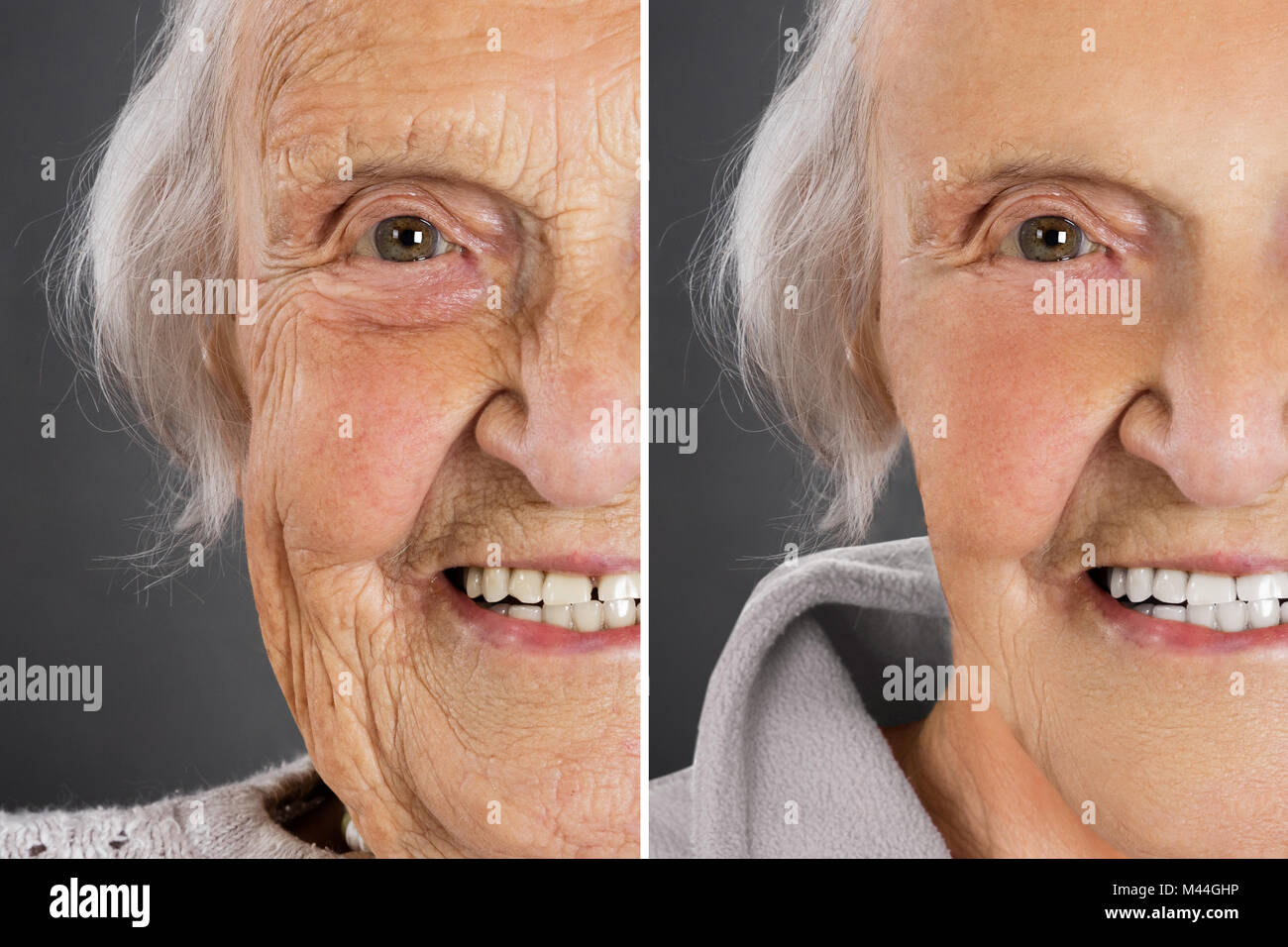 Senior woman anti aging skin treatment before and after - Stock Image