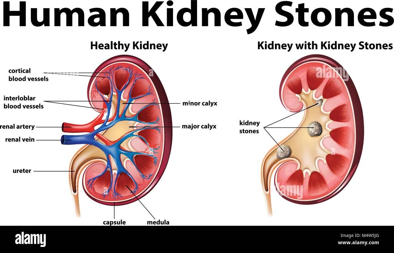 Diagram Of Kidney Stone Locations Online Schematic Diagram