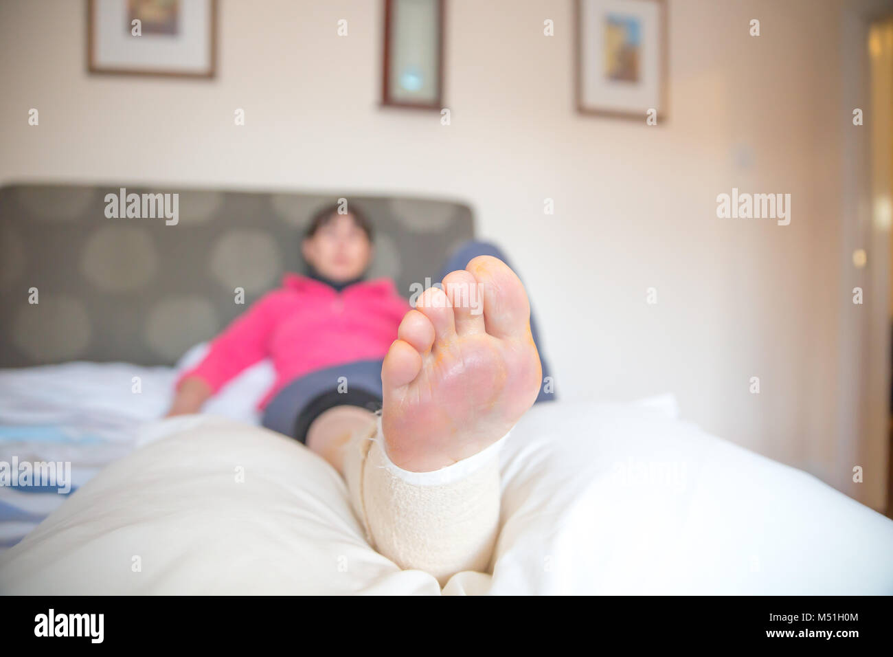 Sore, bandaged foot of woman (showing sole) resting carefully on pillow as sad patient lies on a bed at home, recovering - Stock Image