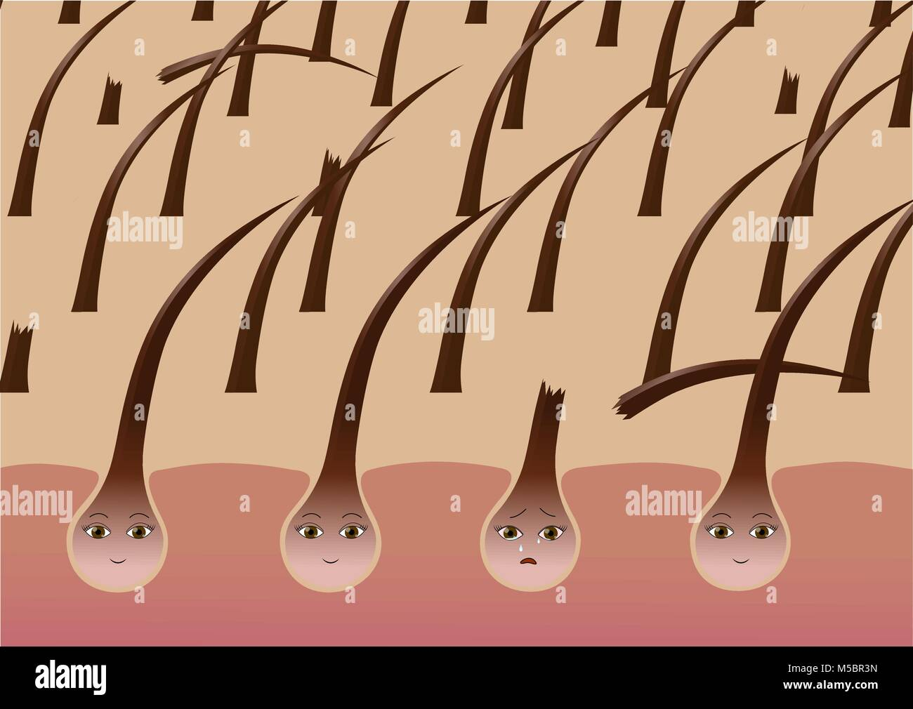 Cartoon hair follicles on the scalp suffer from brittleness - Stock Image