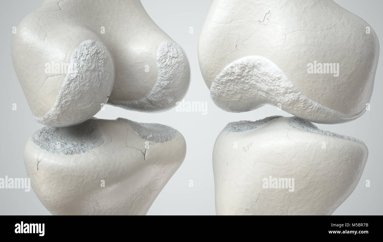 Knee joint with cartilage loss due to Arthose, front and back- 3D Rendering - Stock Image