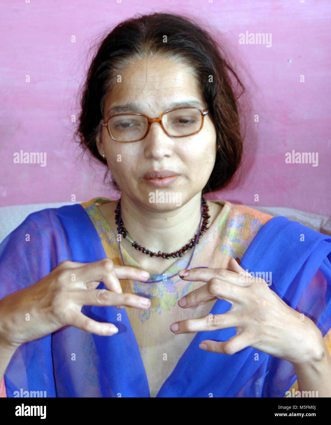 woman deformed fingers in bhopal disaster, madhya pradesh, India, Asia - Stock Image