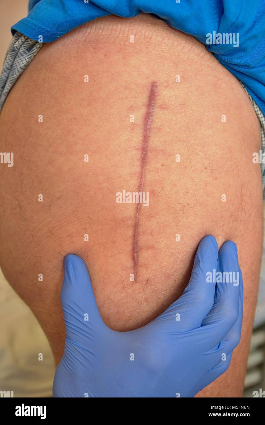 Medicine doctor check scar. Patient  hip joint that was affected by arthritis and replacing it with an artificial - Stock Image