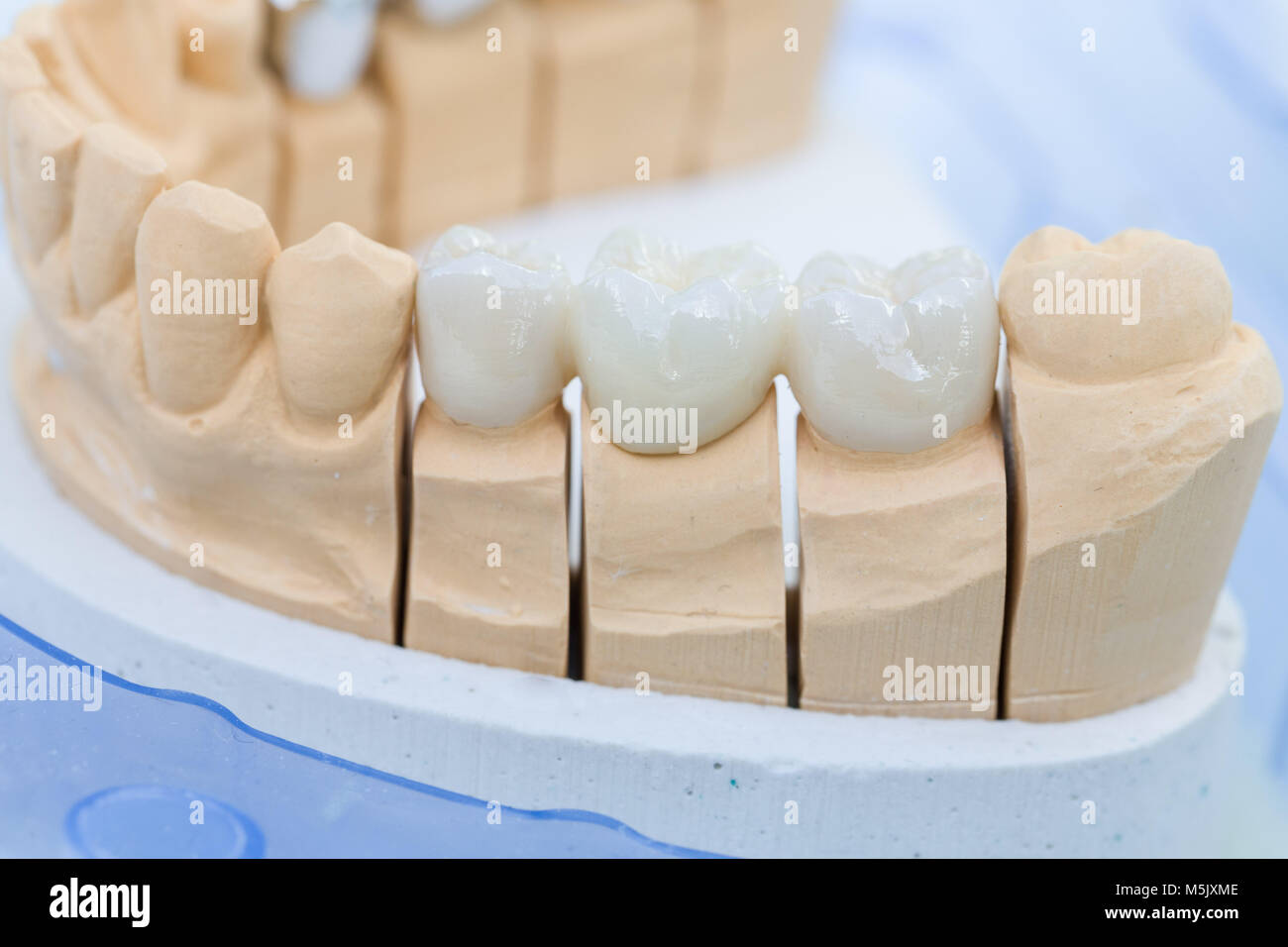 A prosthesis saddle with artificial dentition in a dental laboratory - Stock Image