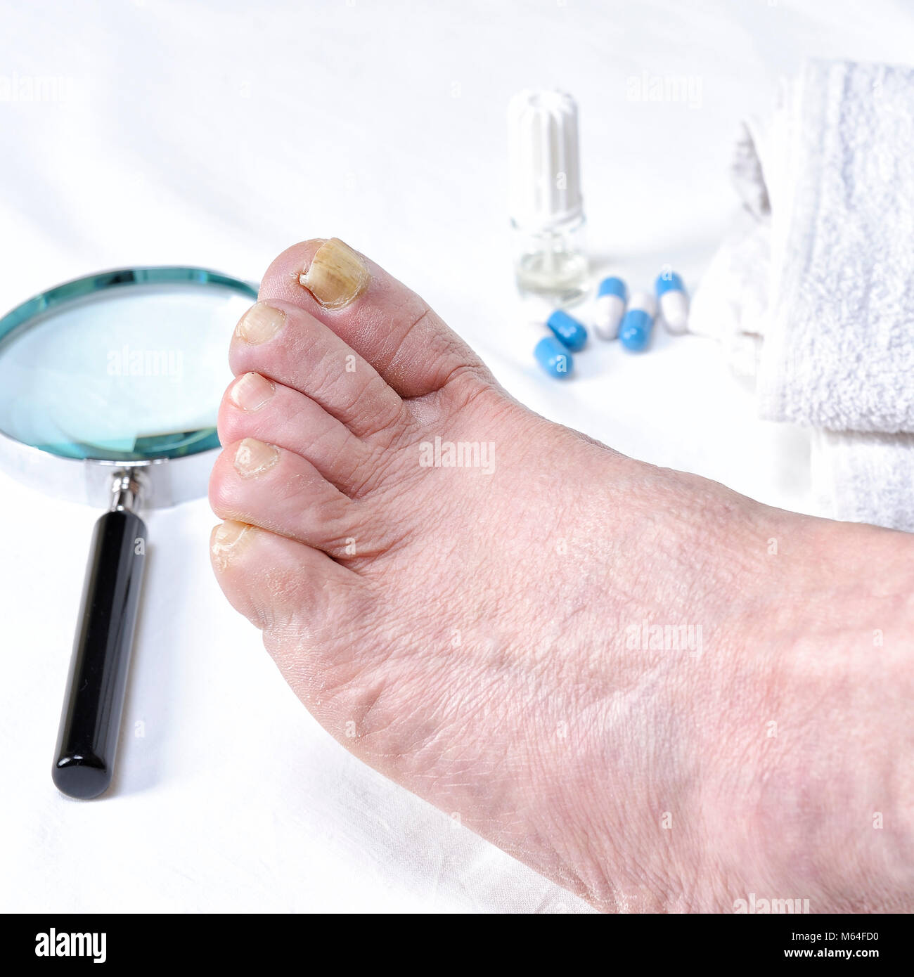 Close up of nail affected by onychomycosis following the action of pathogenic fungi. - Stock Image