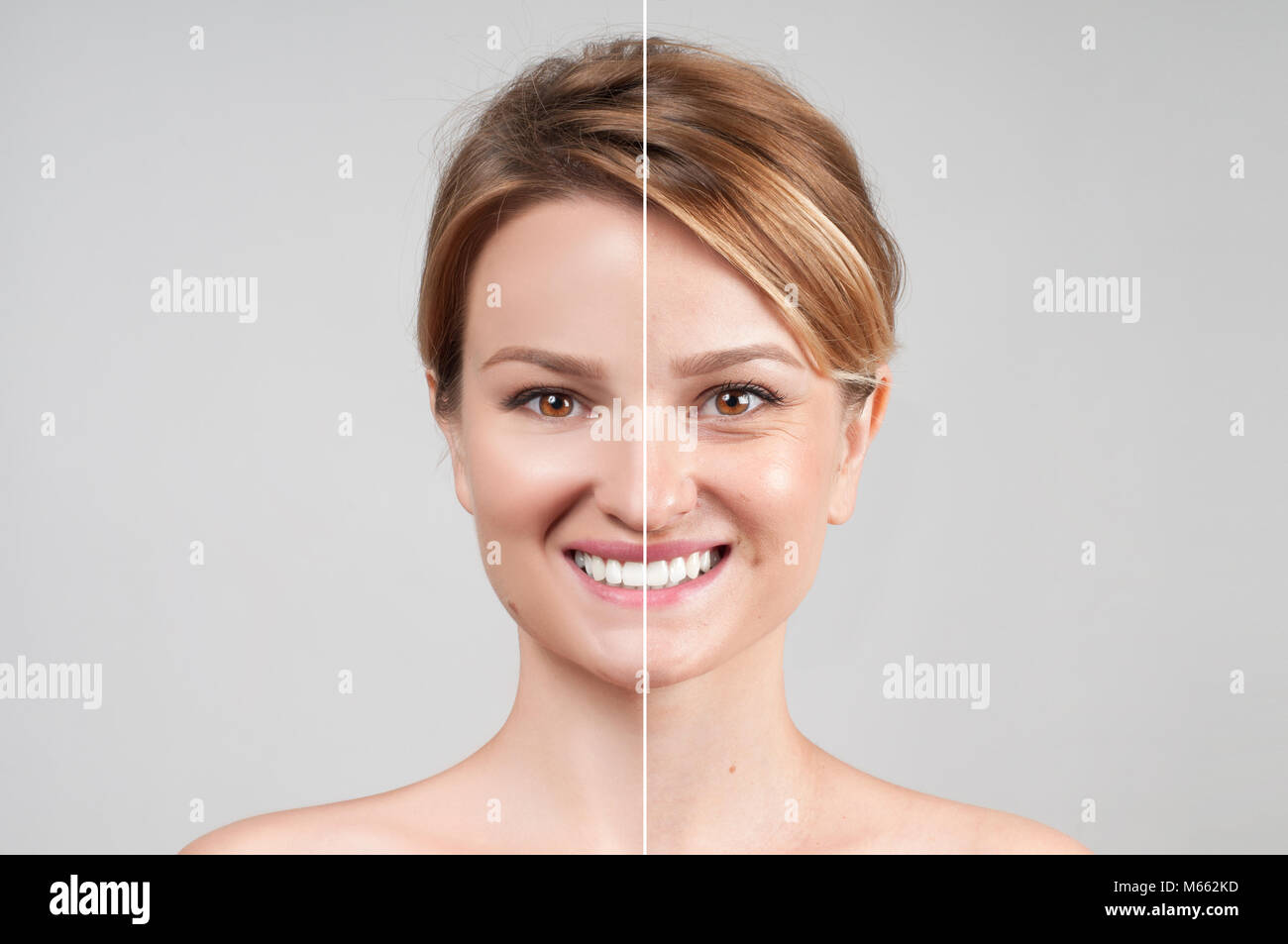 Concept of skin rejuvenation. Woman before and after cosmetic or plastic procedure, anti-age therapy - Stock Image