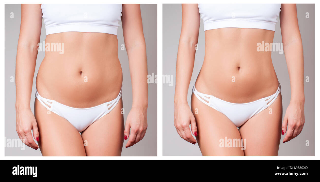 Female body before and after liposuction  Plastic surgery