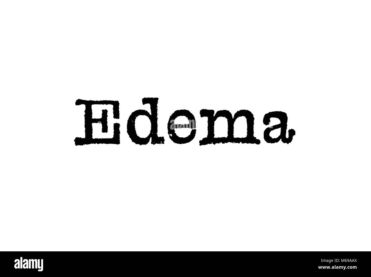 The word Edema from a typewriter on a white background - Stock Image