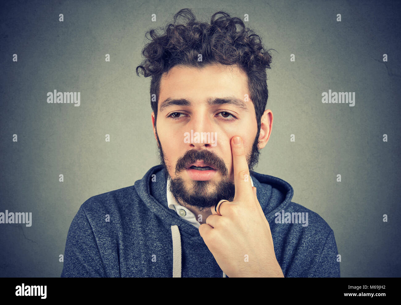 Young bearded man having puffy eyes and sick after sleepless night. - Stock Image