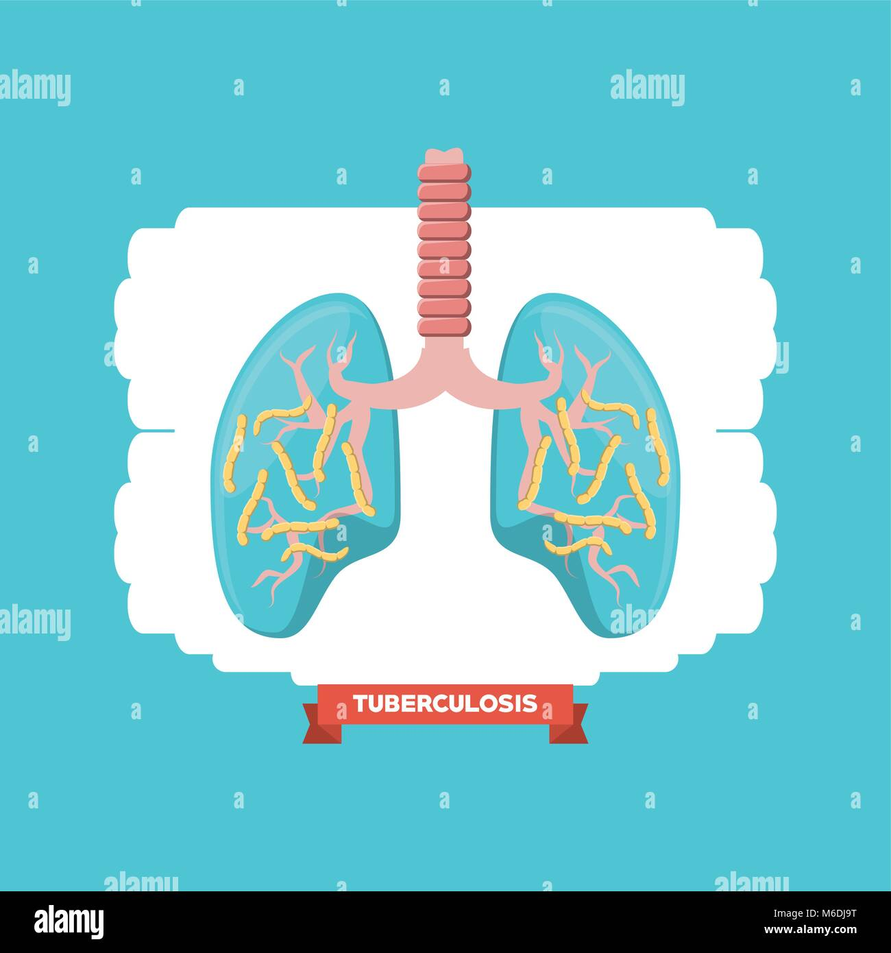 Lungs with tuberculosis bacterias over white and blue background, colorful design vector illustration - Stock Vector