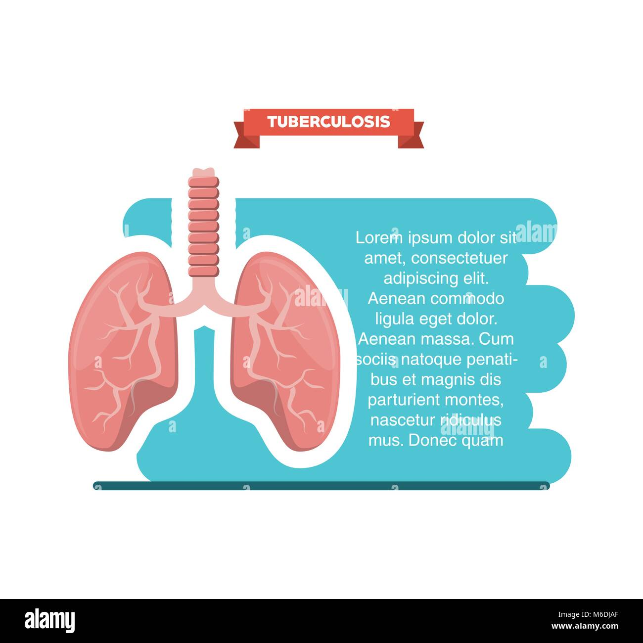 Tuberculosis infographic design with lungs icon over white background, colorful design vector illustration - Stock Image