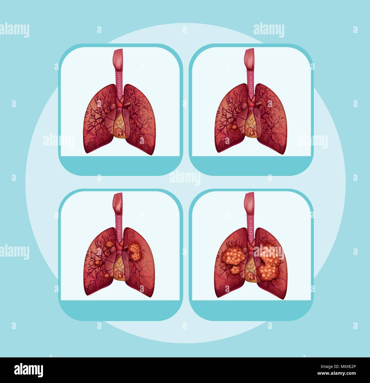 Diagram showing different stages of lung cancer illustration Stock ...