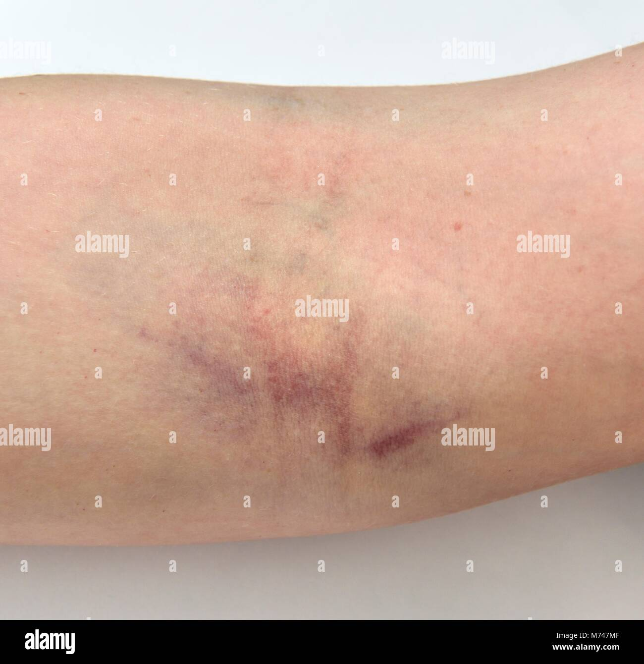 A bruised arm after a blood test - Stock Image
