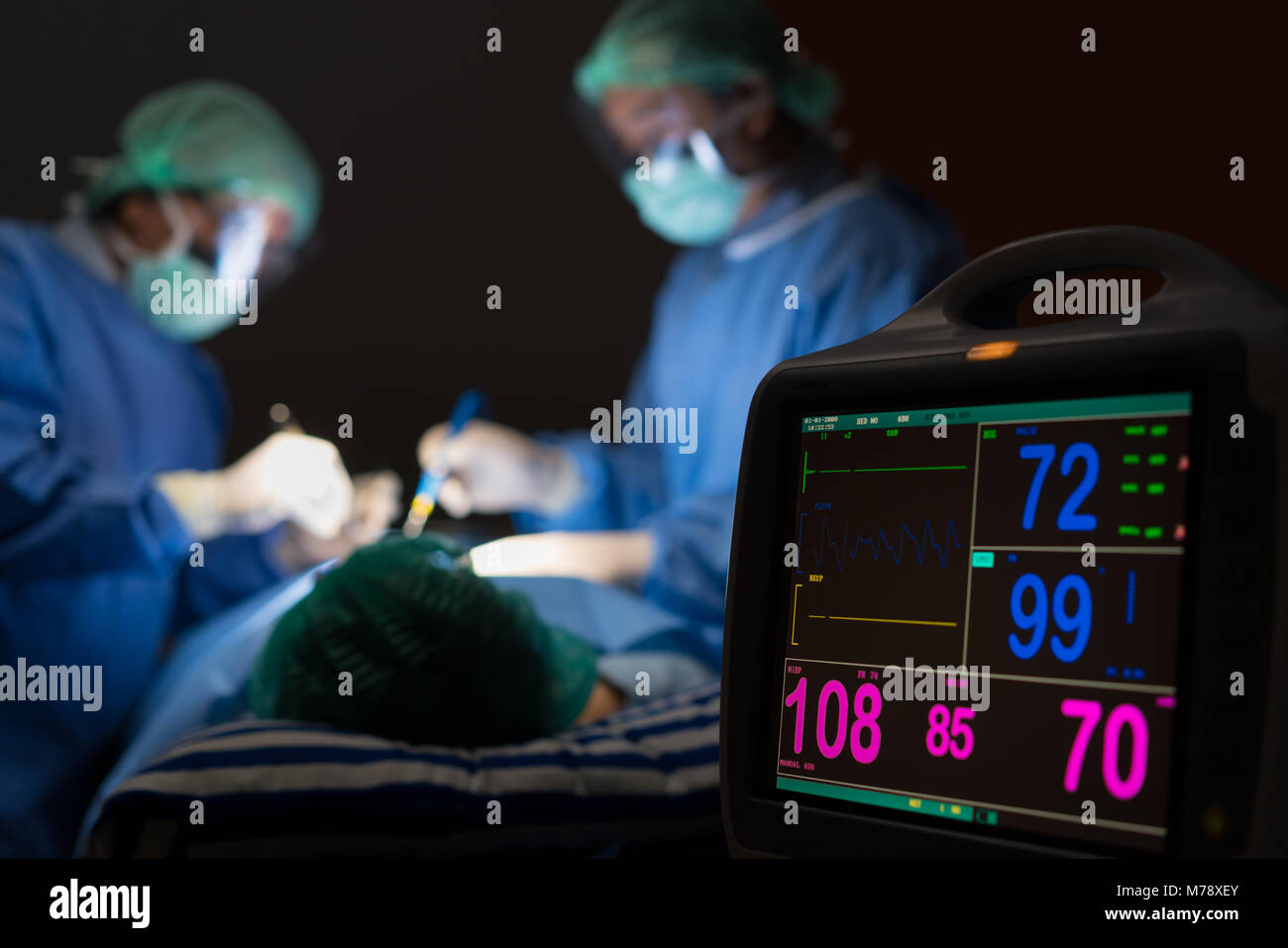 Electrocardiogram in hospital surgery operating emergency room showing patient heart rate with blur team of surgeons - Stock Image