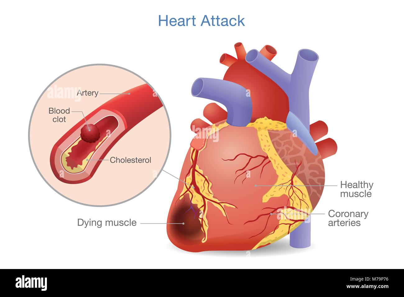 Heart attack patient stock photos heart attack patient stock illustration of arterial thrombosis is a blood clot that develops to heart attack stock ccuart Choice Image