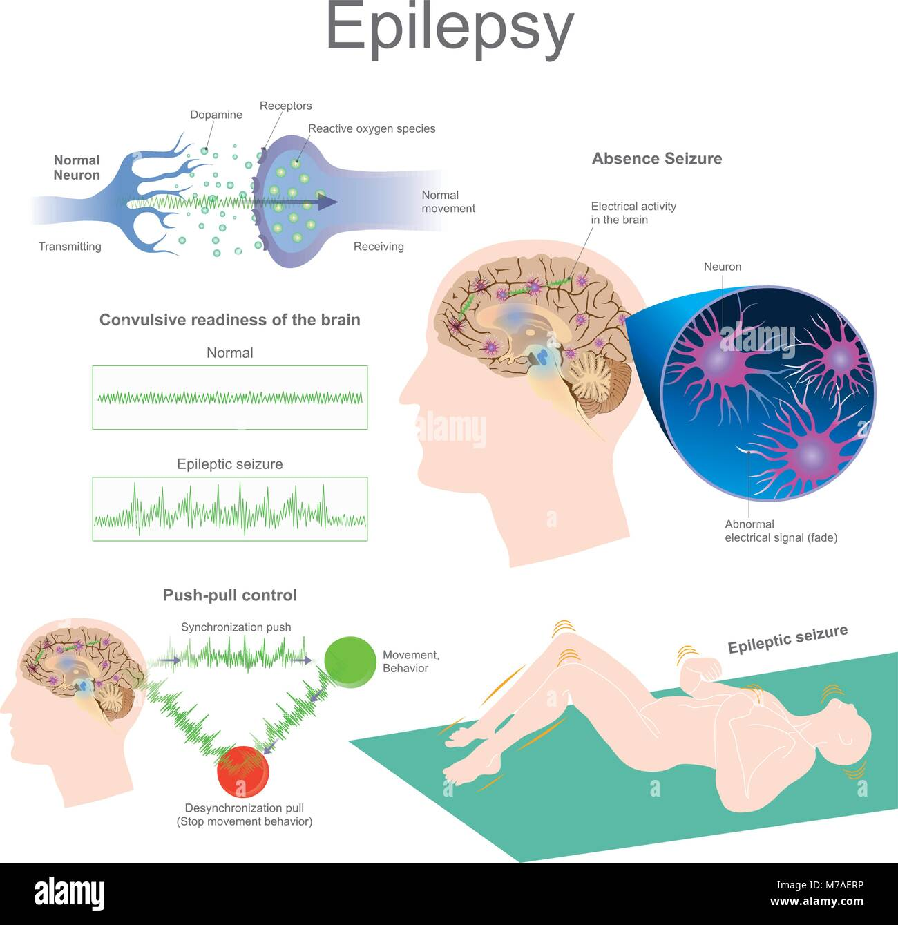 Epilepsy is a group of neurological disorders ...