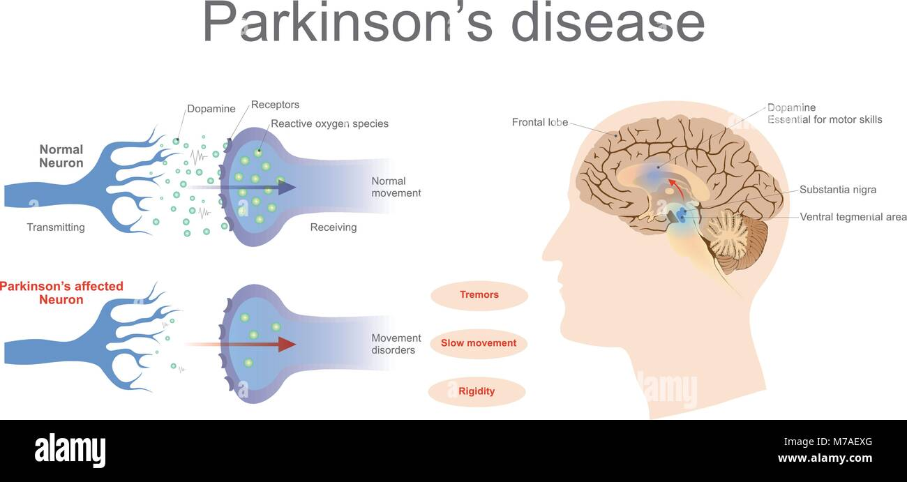 Dopamine levels in a normal and a Parkinson's Affected neuron. Vector Graphic Art, Illustration. - Stock Image