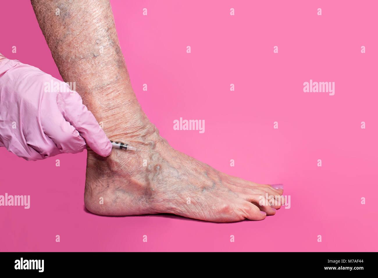Treatment of varicose veins - Stock Image