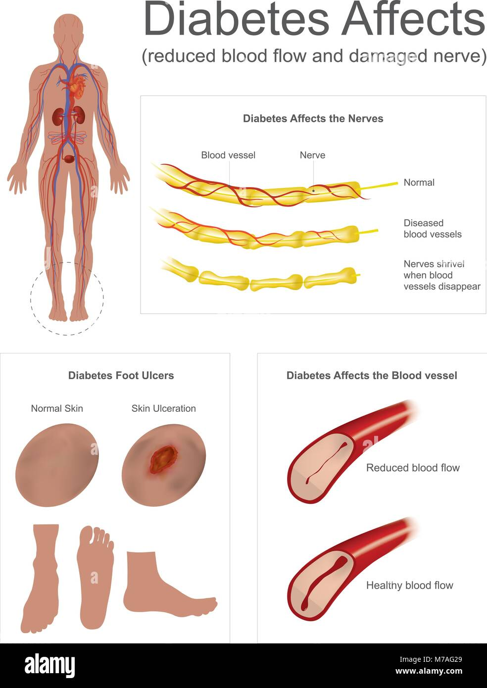 The Nerves in leg shrivel when blood vessels disappear. Foot ulcers ...