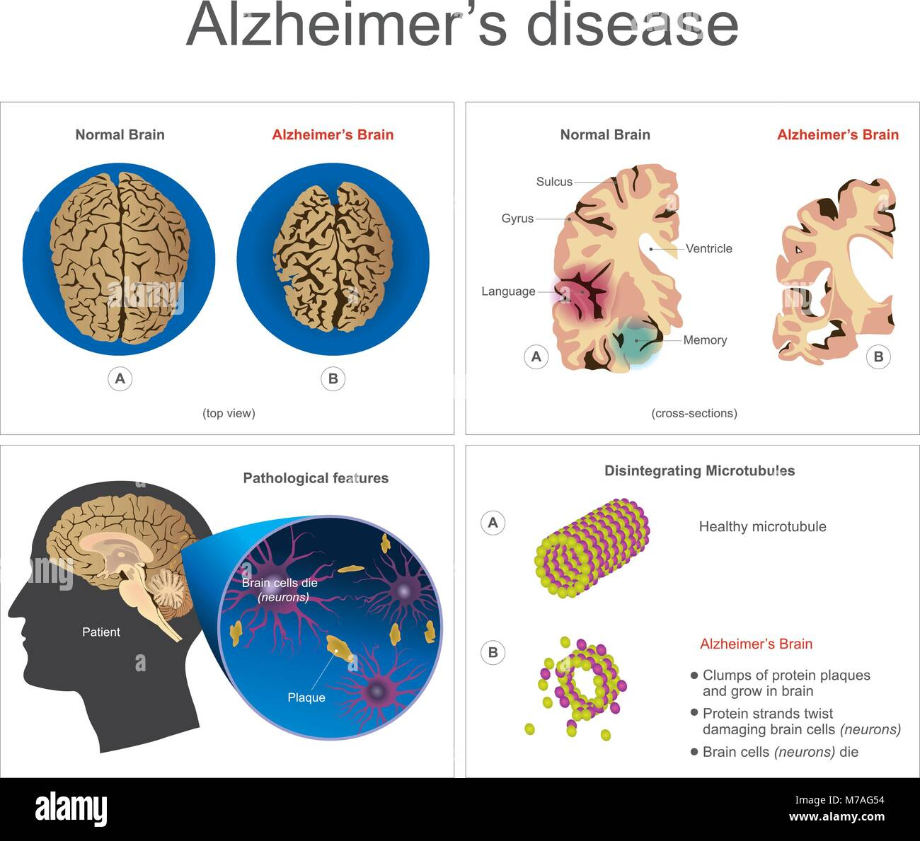 Brain cells die, neuron diseased, certain areas of brain shrink memory loss or changes in memory for people age - Stock Vector