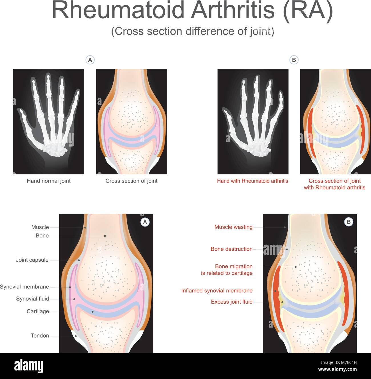 Rheumatoid arthritis is a chronic inflammatory disorder that can affect more than just your joints. Info graphic - Stock Image