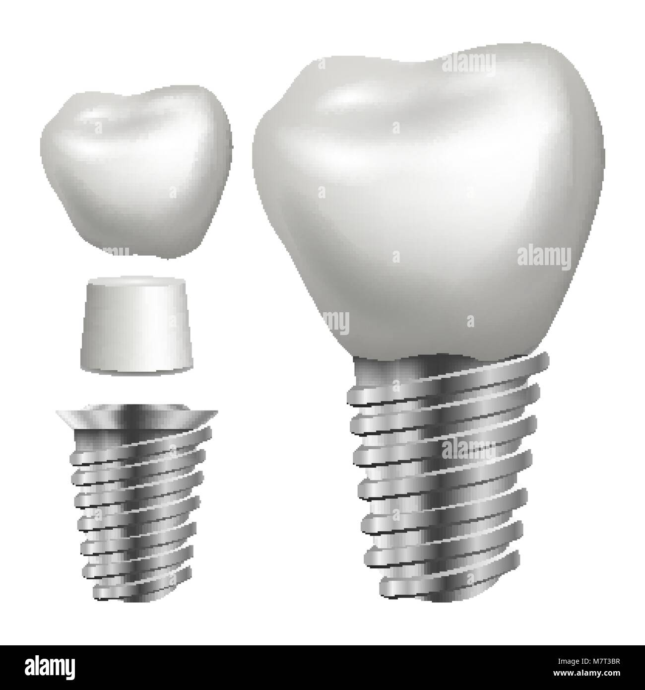 Dental Implant Vector. Side View. Graphic Design Element. Tooth Paste Poster. Realistic Isolated Illustration Stock Vector