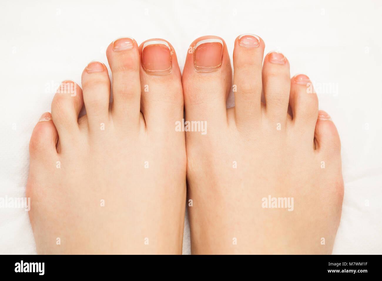 Long Toe Nails Stock Photos & Long Toe Nails Stock Images - Alamy