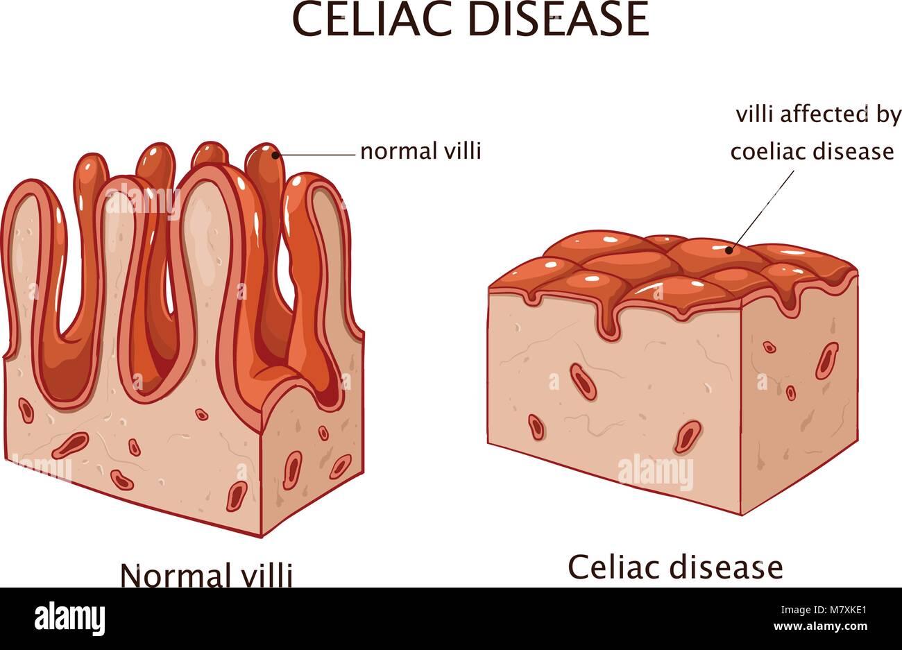 Coeliac disease or celiac disease. small bowel showing coeliac disease manifested by blunting of villi. - Stock Image
