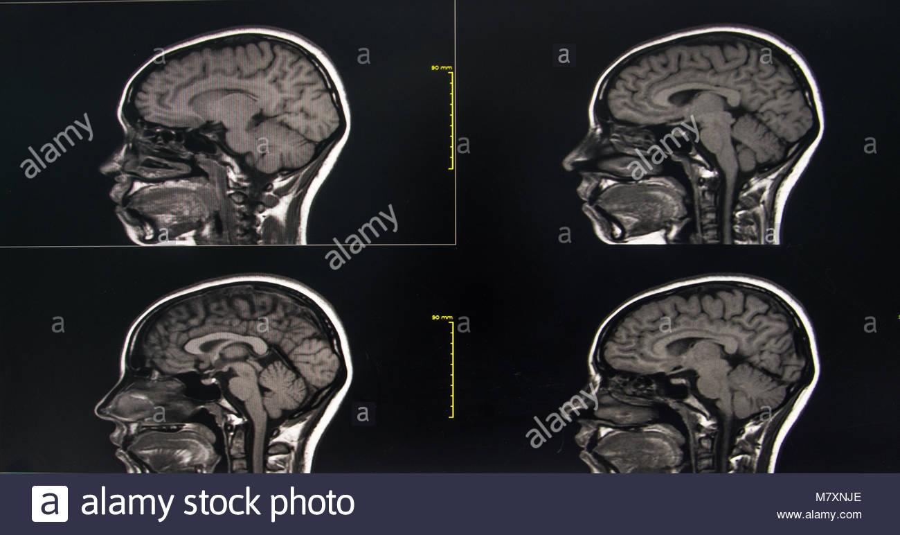 Mri Of The Brain Intracerebral Hemorrhage In The Right Temporal Lobe